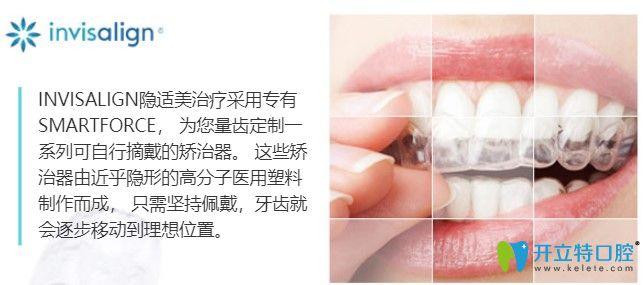 南通康美口腔的隐适美隐形矫正技术