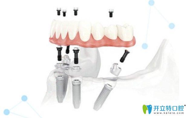 美奥口腔半口即刻种植牙优势