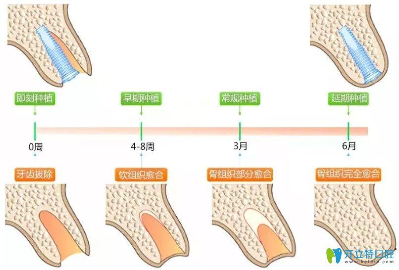 即刻种植牙和传统种植牙区别