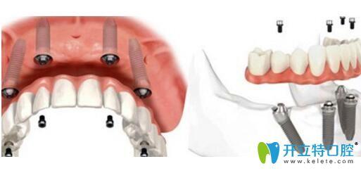 通过all-on-4即拔即种种植牙详细步骤,来了解为啥不要植牙骨