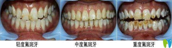 氟斑牙图片
