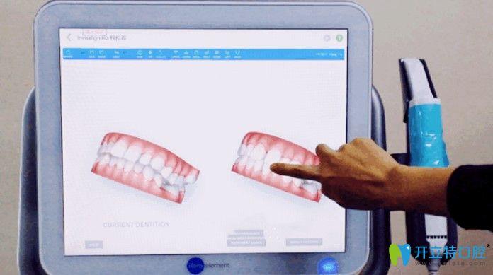 维乐口腔iTero口扫可以让你提前预知矫正效果