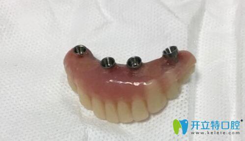 allon4半口种植牙的牙冠
