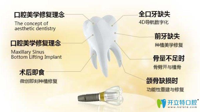 宁波美奥做种植牙好的原因