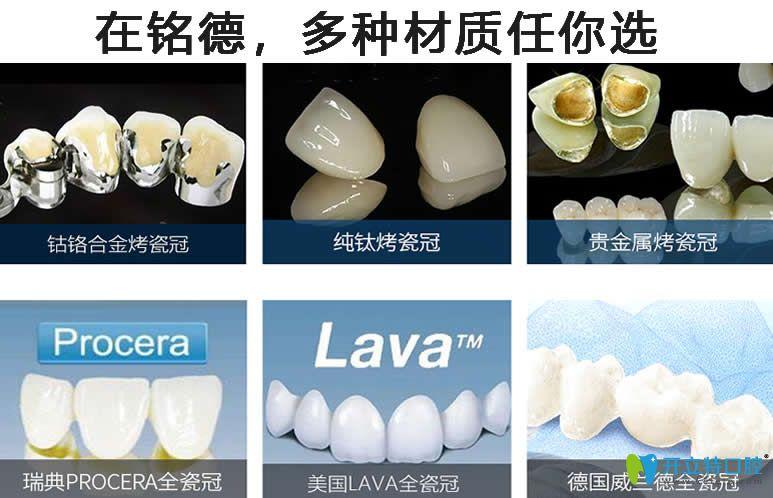 深圳铭德口腔牙齿美白材料多样化