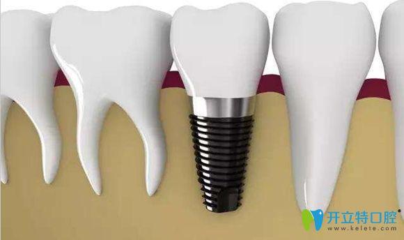 侨诺口腔有多种种植牙品牌可供选择