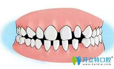 以亲身经历告知大家牙间隙过大有哪些危害以及治疗方法