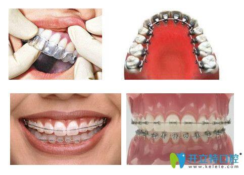 常见的几种牙齿矫正图片