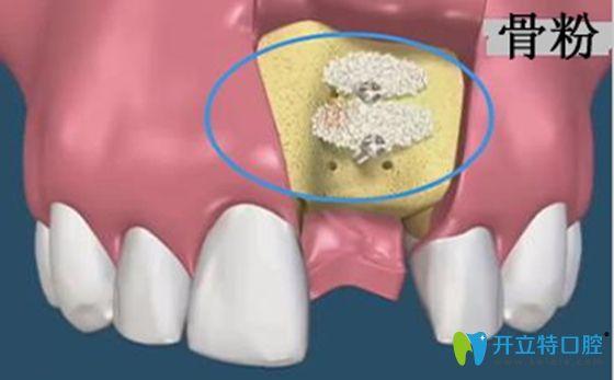 种牙齿填骨粉的利弊和不植骨种牙的后果分析