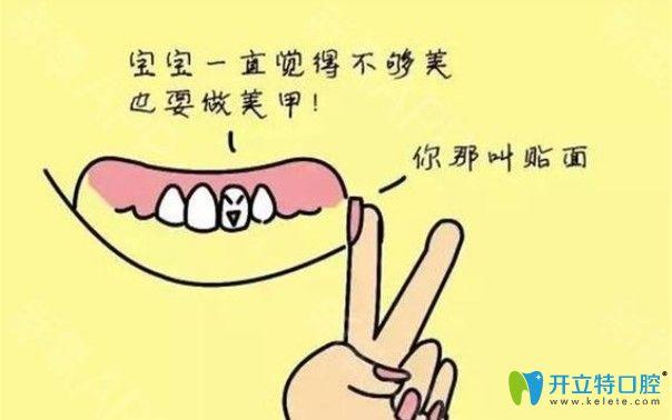 全面解析:全瓷牙贴面1800贵吗?全瓷牙和全瓷贴面哪个使用长?