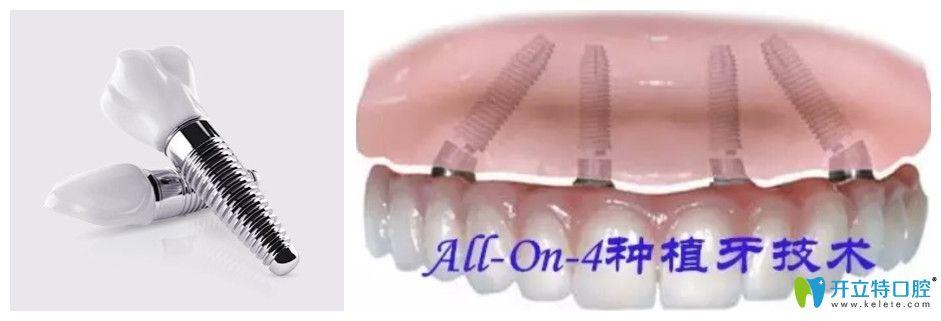 美奥口腔allon4半口牙种植价格图
