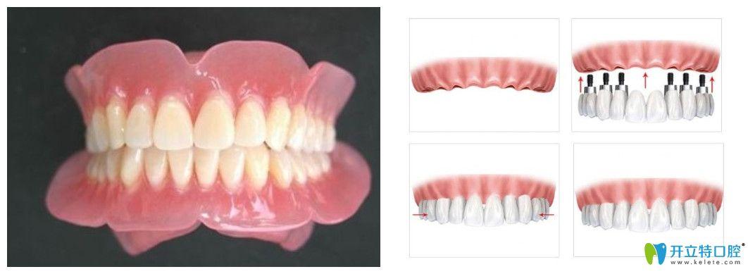 夏俊杰说全口牙缺失可以做活动假牙或者种植牙