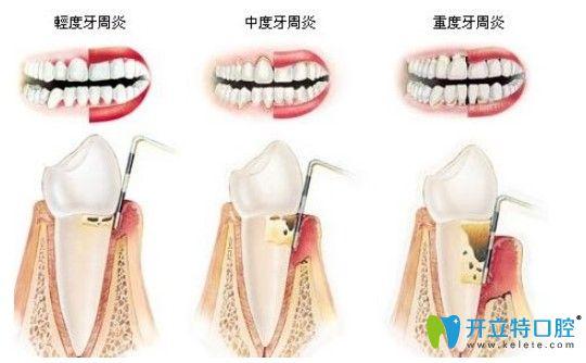 美奥口腔全口牙周治疗价格
