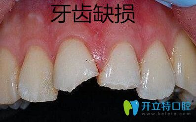 牙齿缺损修复选择金属牙冠、烤瓷牙冠和全瓷牙冠哪个好?
