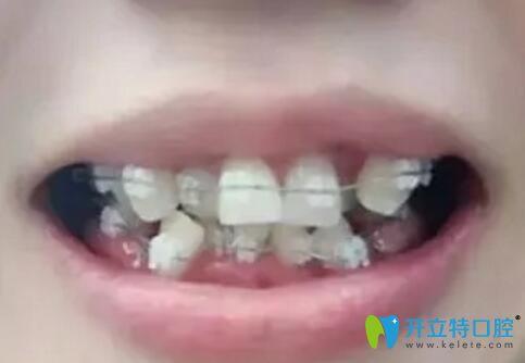 珠海牙齿矫正价格不妨看看我在九龙口腔花1万多矫牙后效果