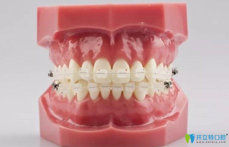 看完半隐形牙齿矫正价格表你就知道陶瓷托槽矫正多少钱啦