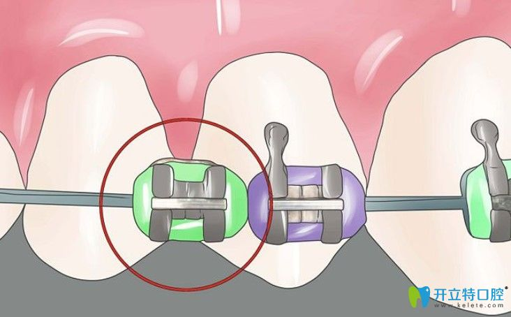 陶瓷自锁牙套_3m牙套_3m牙套价格_3m牙套与普通牙套区别_3m陶瓷自锁托槽价格 ...