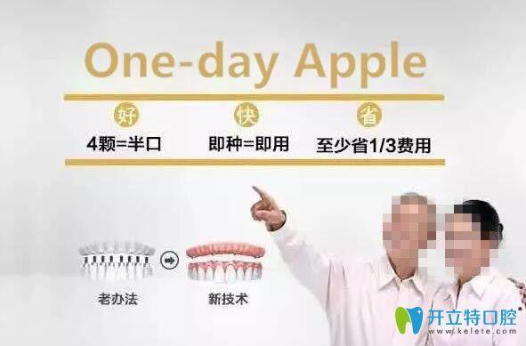 湛江致美口腔One-day Apple种植技术