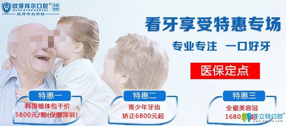 深圳韩国种植牙多少钱一颗?拜尔口腔登腾种植牙价格才5800起