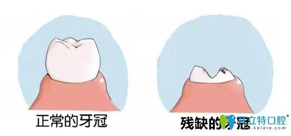残缺的牙冠有什么危害