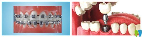 牙齿矫正和种植牙图片
