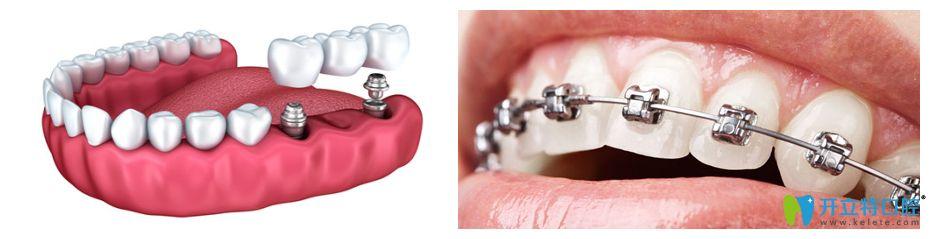 种植牙和牙齿矫正图片