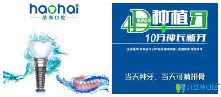 深圳浩海口腔4D种植牙图示