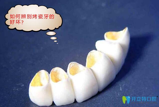 烤瓷牙是不是价格越贵越好?告诉你如何鉴别烤瓷牙的好坏