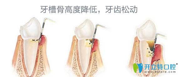 牙槽骨高度降低牙齿会松动