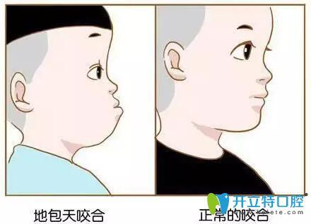 地包天和正常牙齿对比图