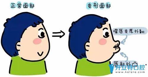 李佳岭医生浅谈儿童错颌畸形的危害