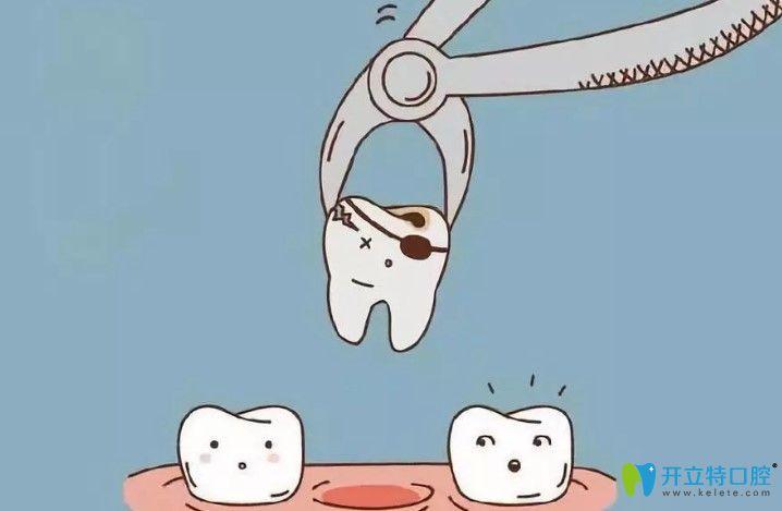隐适美矫正龅牙拔了两颗智齿