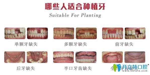 北京中诺口腔种植牙征集人群
