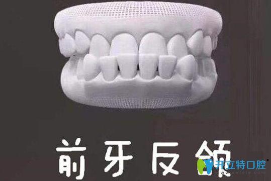 牙齿地包天图片