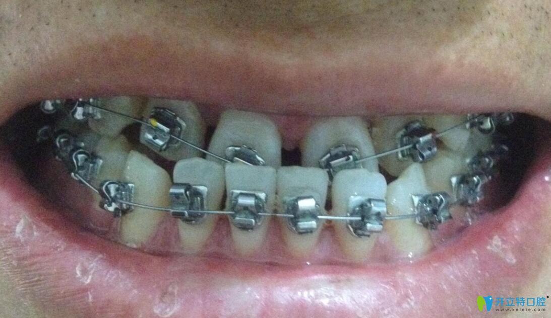 金属固定矫正器矫正牙齿地包天