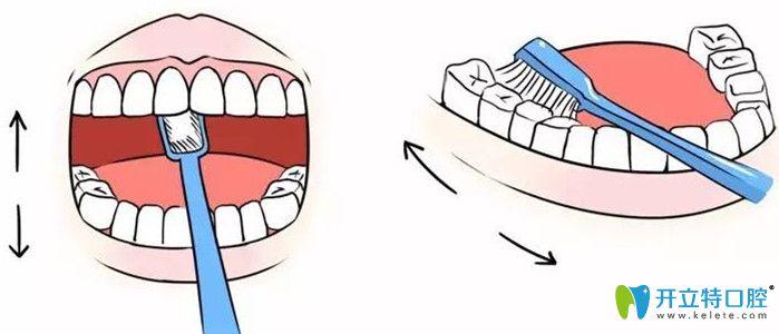 种植牙一般能用多长时间