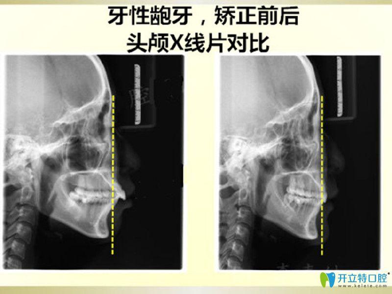牙性龅牙矫正前后对比图