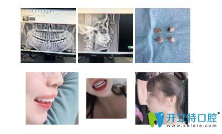 在深圳希思口腔做龅牙矫正过程图