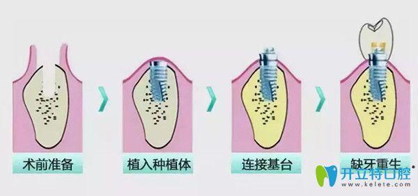 深圳德贝美种植牙怎么样?从种植牙费用及特色技术分析