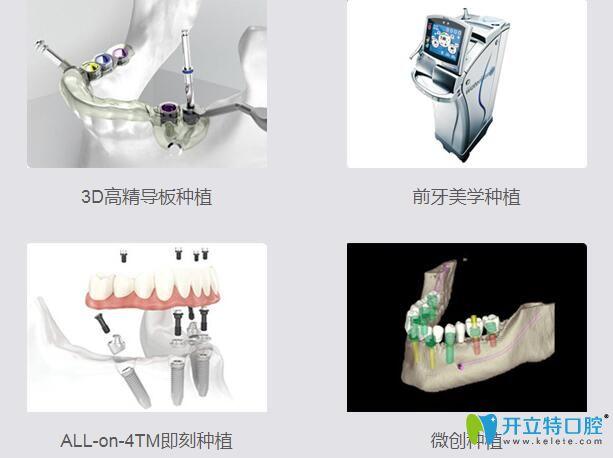 重庆美奥口腔4大种植技术