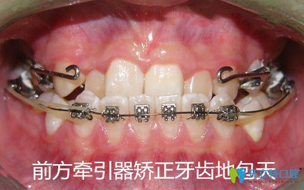 前方牵引器矫正牙齿地包天