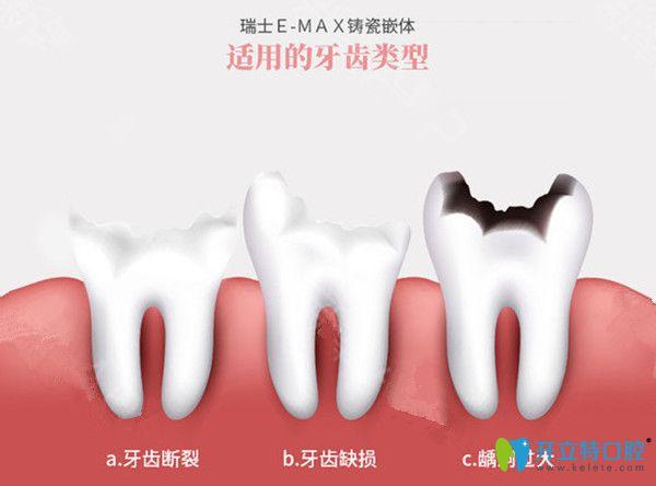 牙齿贴面适合的牙齿类型