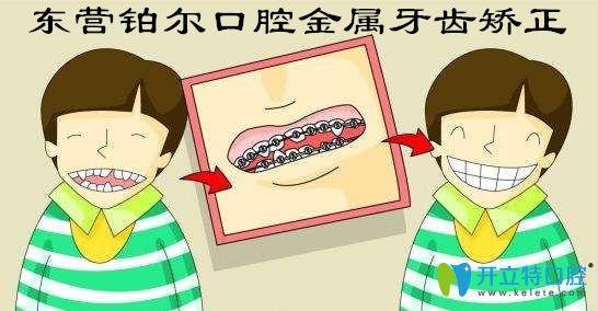 畸形牙齿矫正福利!东营铂尔口腔金属矫正8800元起免费拍牙片