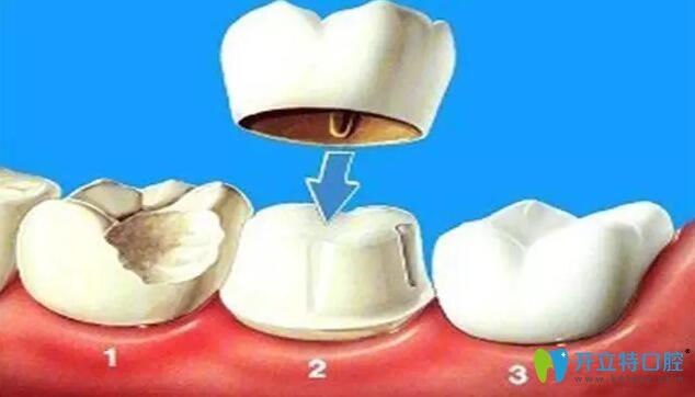 烤瓷牙必须磨牙吗,磨牙需要磨多少?缺牙做烤瓷牙必看