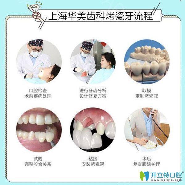 上海华美齿科做烤瓷牙过程