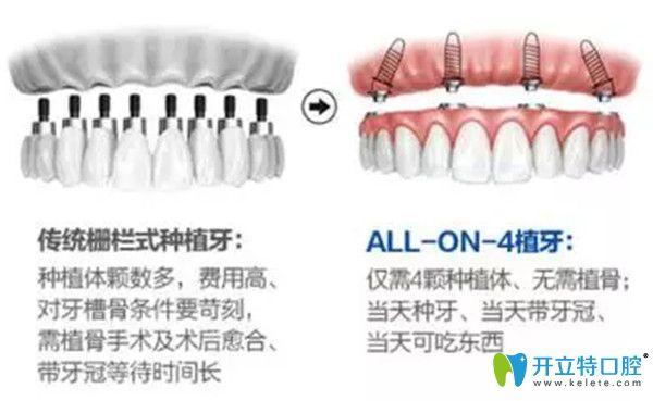 传统种牙和一日得种牙的区别