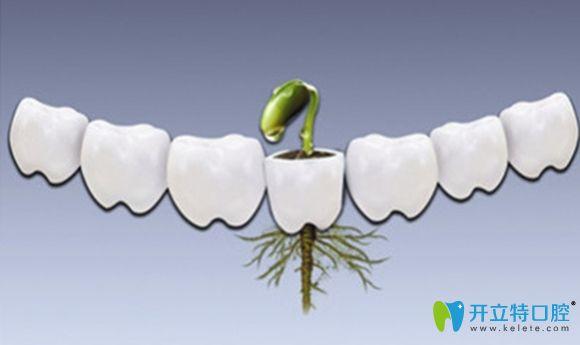 真相探求:种植牙哪个品牌好?瑞士iti就一定比奥齿泰好吗?