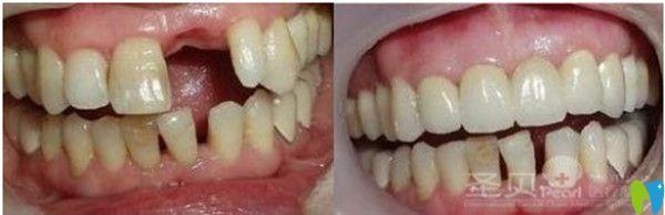 济南圣贝口腔种植牙单颗牙缺失对比图