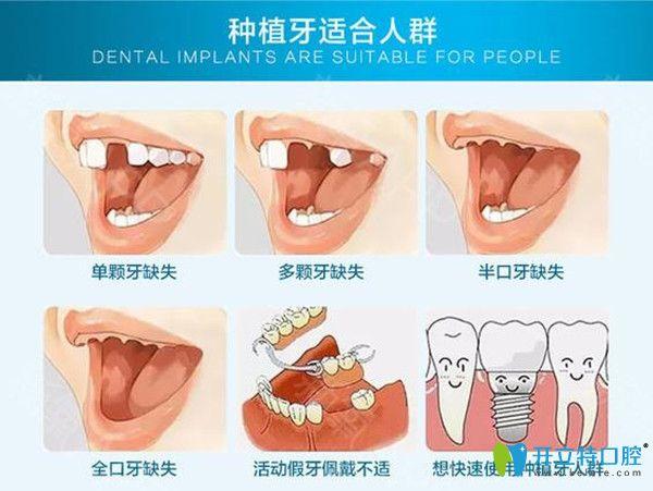种植牙适宜人群