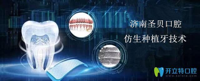 济南圣贝口腔仿生种植牙技术让种植牙更安全